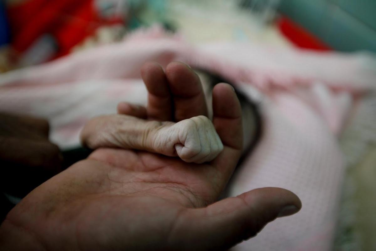 Chùm ảnh: Sự thảm khốc của nạn đói đang hoành hành ở Yemen