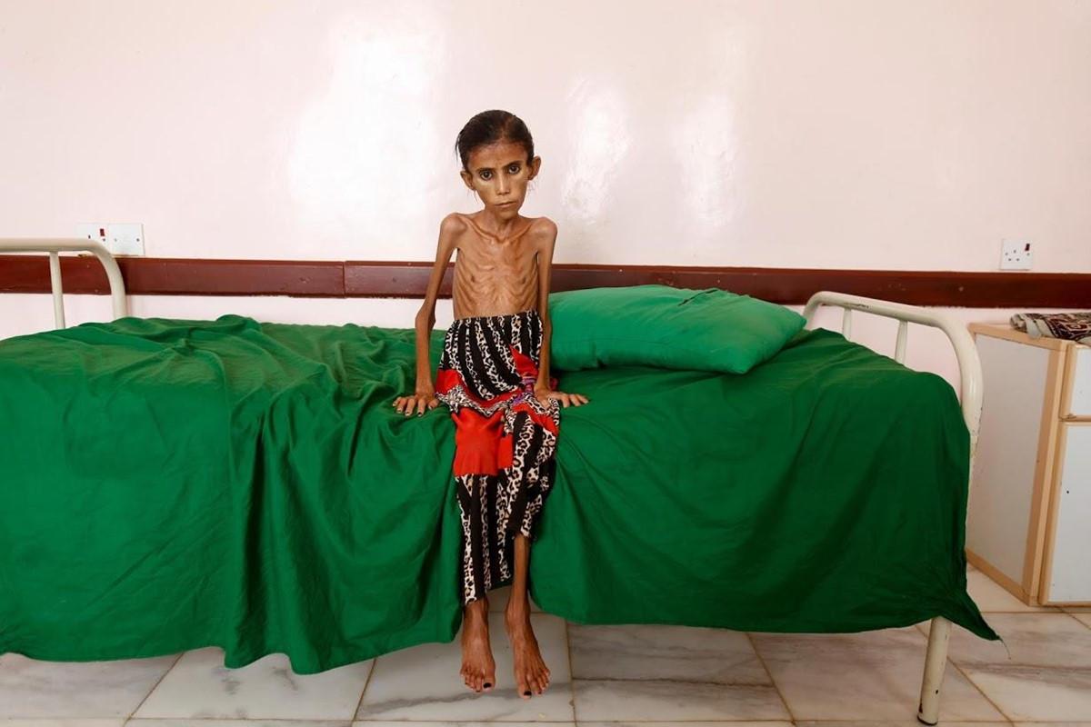 Nan doi de doa su song tai Yemen sau 4 nam noi chien hinh anh 8