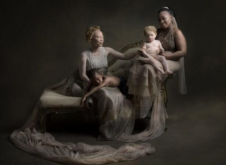 Vẻ đẹp và định kiến người bạch tạng qua ống kính nhiếp ảnh gia Nigeria