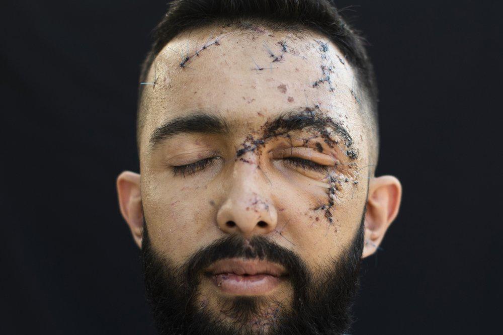 Chùm ảnh: Những bức chân dung ám ảnh sau vụ nổ Beirut