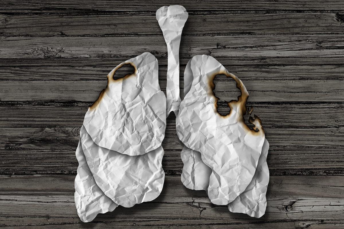 """Thuốc lá """"đốt"""" lá phổi của bạn như thế nào?"""